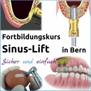 Fortbildung Sinus-Lift - Freitag 23. März 2018 von 09:00 bis 16:00 in Bern