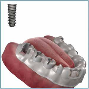 OneGuide Bohrschablone für 1 Implantat, inkl. CAD-Planung und Chirurgie-Bericht