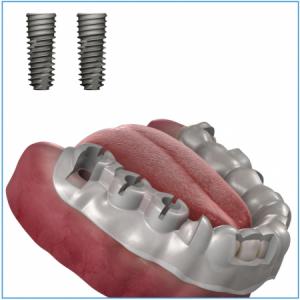 OneGuide Bohrschablone für 2 Implantate, inkl. CAD-Planung und Chirurgie-Bericht