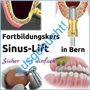 Fortbildung Sinus-Lift Hands-On Kurs - Freitag 29.3.2019, 09:00-16:00 in Bern