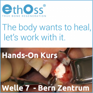 Fortbildung EthOss® Bone Graft Hands-On Kurs, 3.5.2019, 15:30-18:00 in Bern