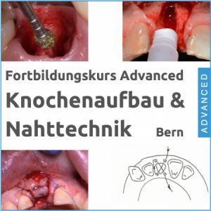 Fortbildung Knochenaufbau & Nahttechnik Hands-On Kurs 13.11.2020 in Bern