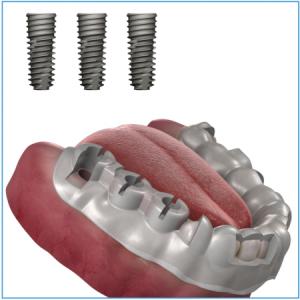OneGuide Bohrschablone für 3 Implantate, inkl. CAD-Planung und Chirurgie-Bericht