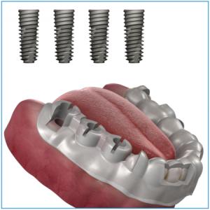 OneGuide Bohrschablone für 4 Implantate, inkl. CAD-Planung und Chirurgie-Bericht